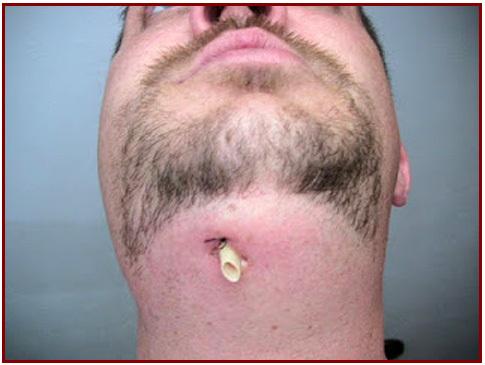 emergency treatment of dental abscess